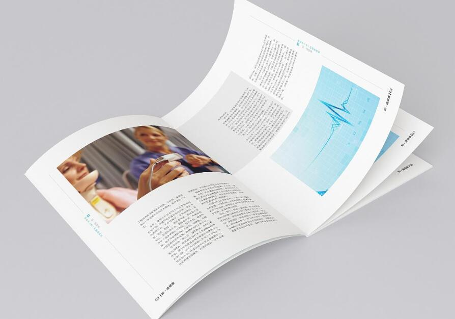 如何在印刷过程中控制柔印产品精细度